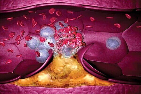 kraujo krešulys ant varpos