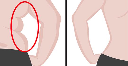 kaip numesti riebalus aplink viršutinę nugaros dalį