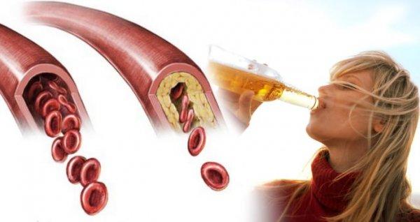 Ar galiu gerti alų ir prarasti riebalus?