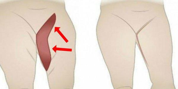 Vidiniai riebalai - nematomi, tačiau kenkiantys jūsų sveikatai, Pašalinti organų riebalus